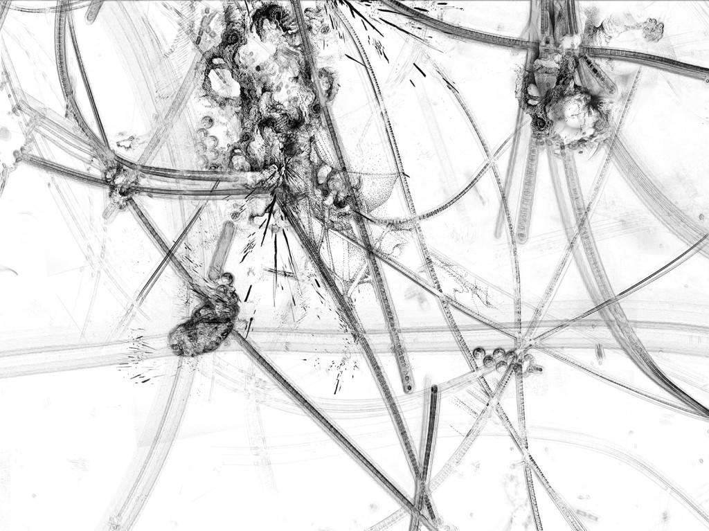 Germe 5 – série « H2O », dessin à l'encre sur images de microscopie obtenues par microscopie de fluorescence et contraste de phase ; transfiguration et dévoilement de l'intimité cellulaire d'une goute d'eau, impression sur verre, dimensions variables, 2016.