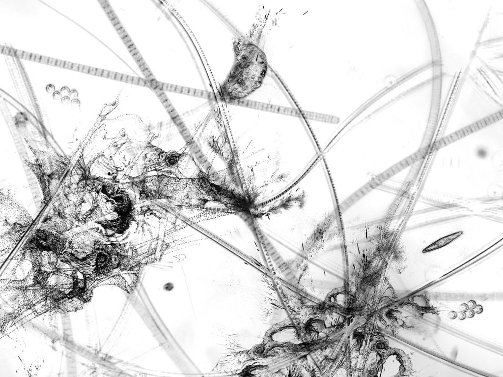 Germe 6 – série « H2O », dessin à l'encre sur images de microscopie obtenues par microscopie de fluorescence et contraste de phase ; transfiguration et dévoilement de l'intimité cellulaire d'une goute d'eau, impression sur verre, dimensions variables, 2016.